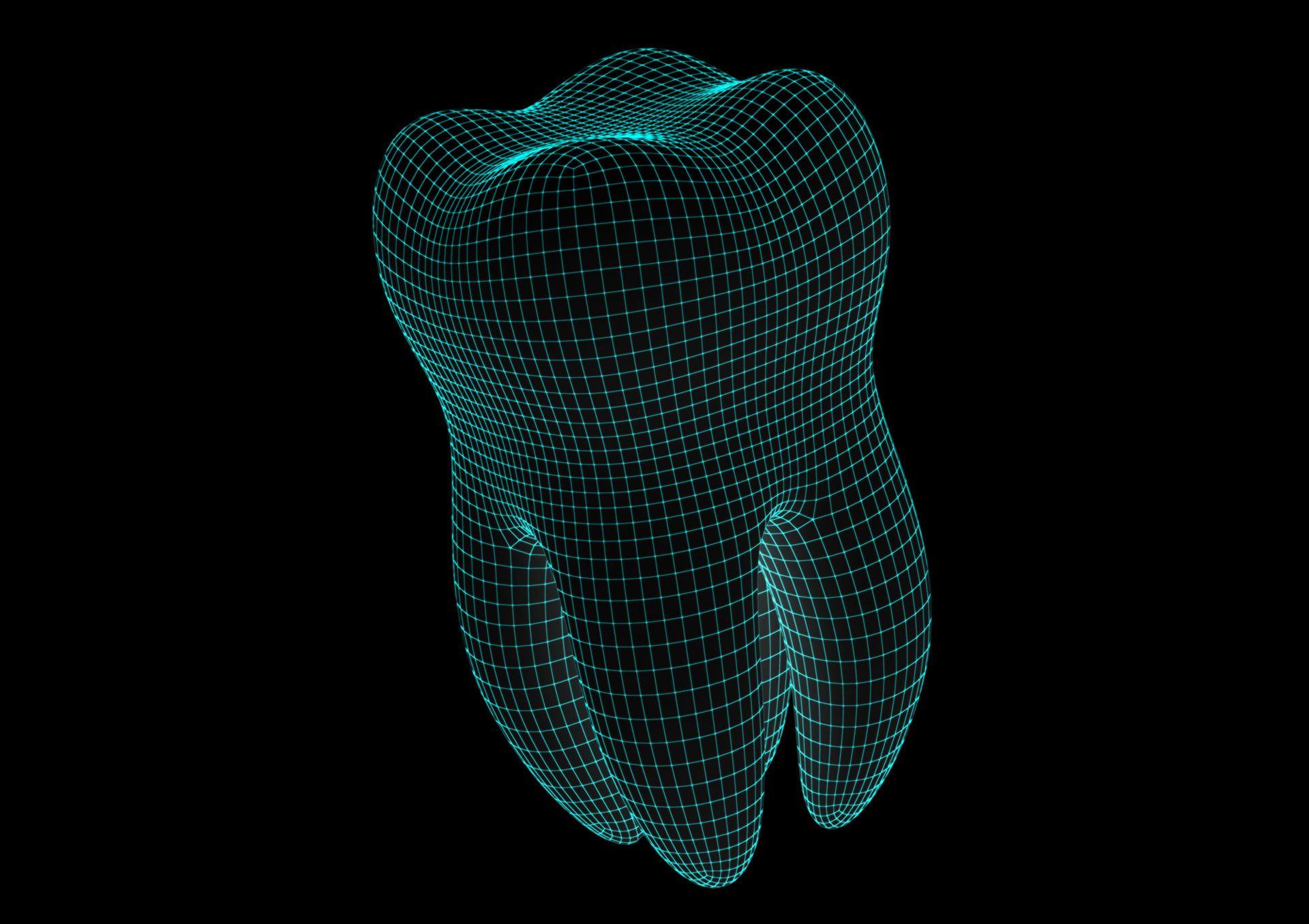 Implantes Dentales en 3D
